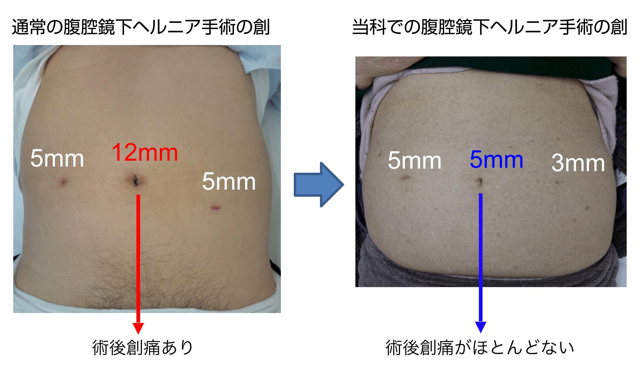 手術 腹腔 へそ 鏡